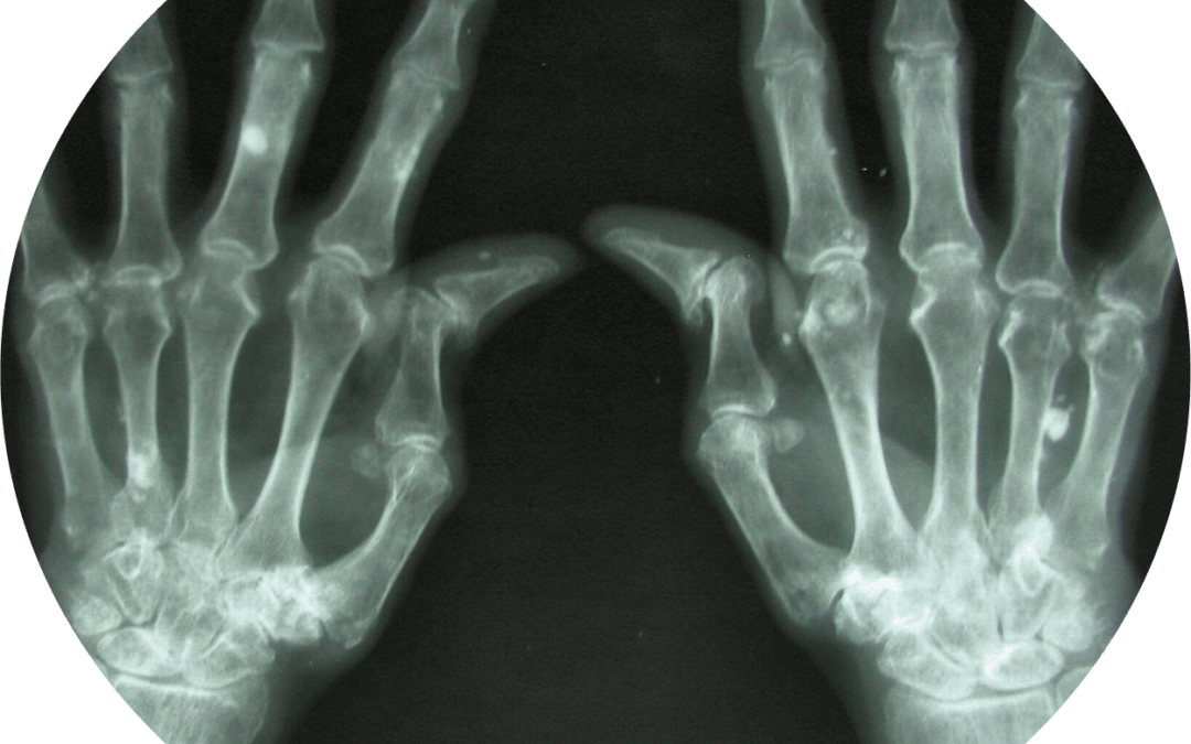 """Treat-to-Target: Are digital solutions a """"Silver Bullet"""" for patients?"""